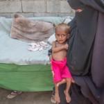 2015年4月から2018年10月までに、食糧不足のために84,000人の701人の子供が死亡した