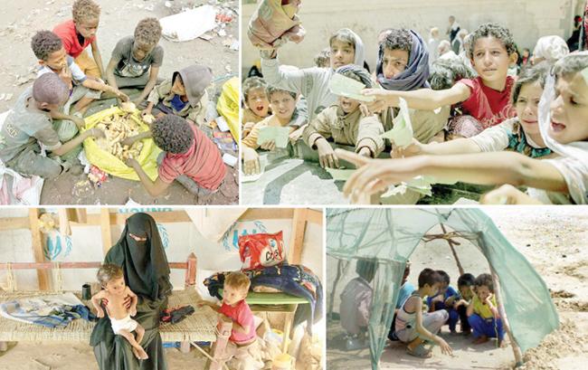 内戦で荒廃したイエメンの最悪の飢饉は人口の80%を飢えさせます